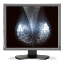 NEC DISPLAY MD211G5 DIAGNOSTIC DISPLAY RECEIVES FDA CLEARANCE FOR USE IN TOMOSYNTHESIS