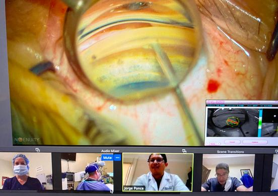 Magewell 4K USB Capture Devices Help Innovative Ophthalmology Specialists Remotely Train Retinal Surgeons Worldwide